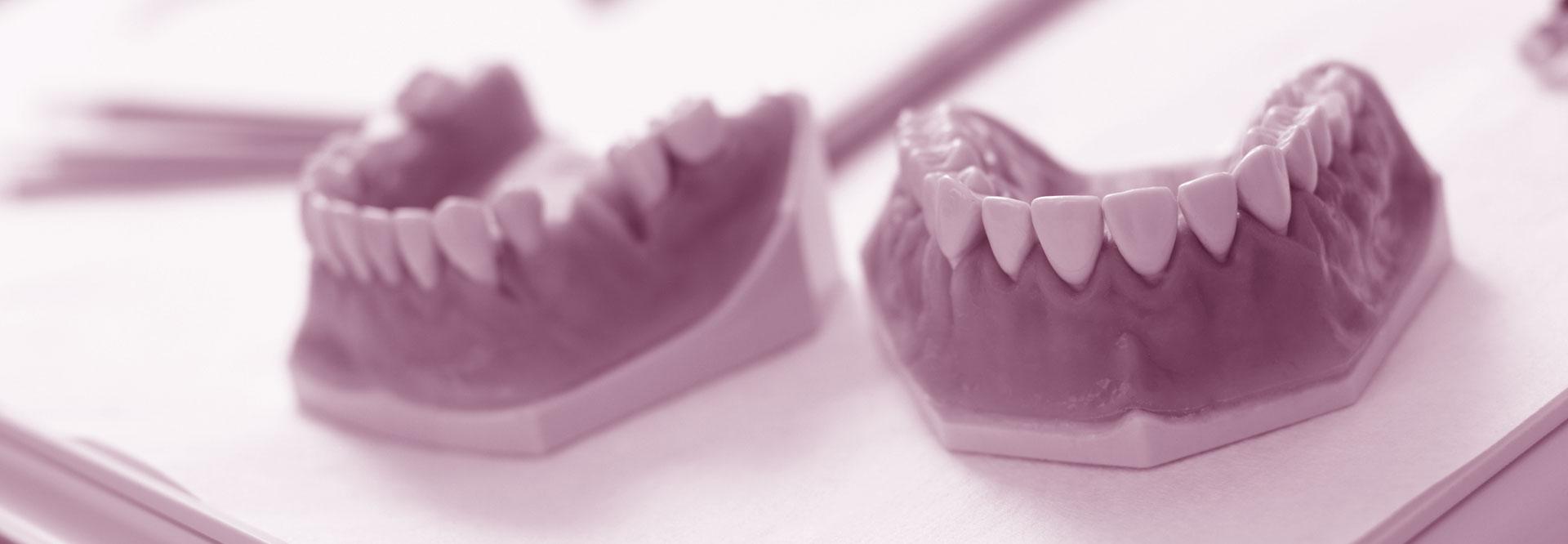 dentures-banner-1