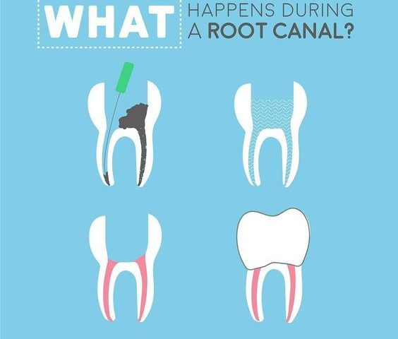 Root Canal Procedure Windsor Ontario