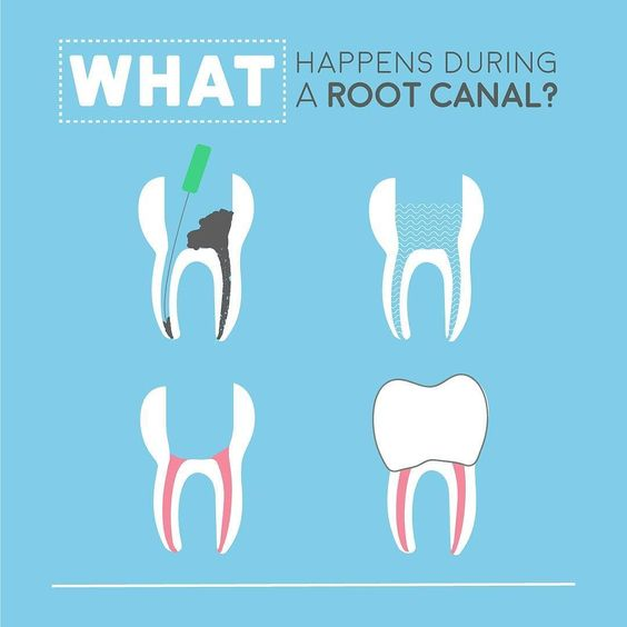 Root Canal Procedure Windsor Ontario